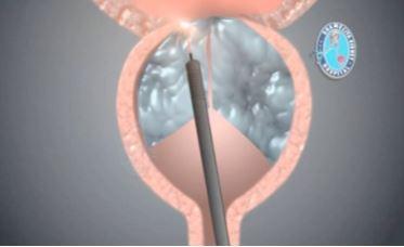 Laserowa ablacja prostaty, leczenie urolog Warszawa /></p><p><img src=