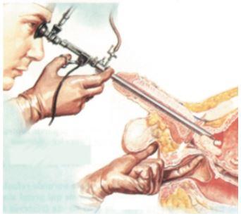 TURP -  Przezcewkowa elektroresekcja prostaty /></p><p><img src=